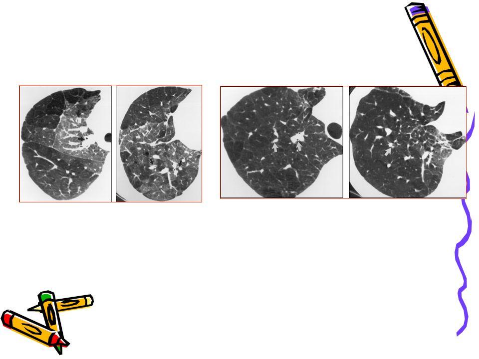 Uzun dönem akciğer sorunları Solunum fonksiyon testleri *Prematüre, düşük doğum ağırlıklı bebeklerin yenidoğan dönemindeki RDS'den bağımsız olarak okul çocukluğu döneminde daha düşük SFT değerlerine sahip olduğu bir çok çalışma ile gösterilmiştir.