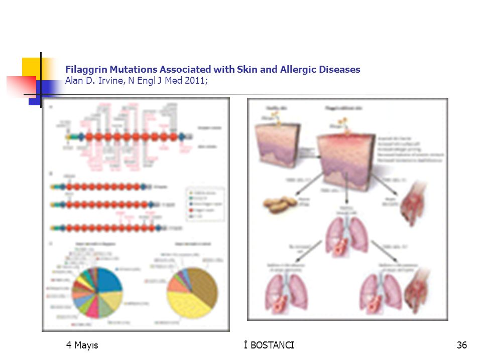 Levels of filaggrin degradation products are influenced by both filaggrin genotype and atopic dermatitis severity Allergy Volume 66, Issue 7, pages 934–940, July 2011Volume 66, Issue 7, 4 Mayısİ BOSTANCI37