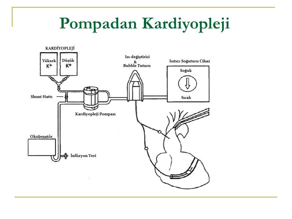 Myokardial Koruma Sistemi (MPS2) On-Pump Microplegia Off-Pump Microplegia Hedeflenen Microplegia