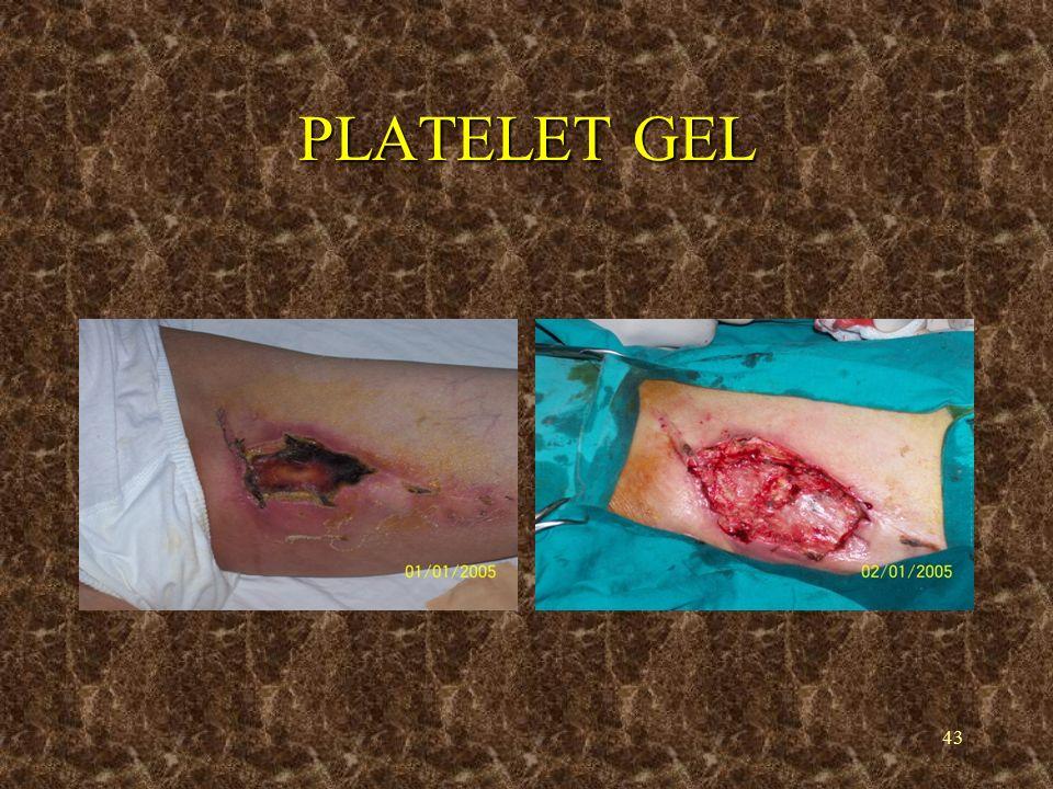 44 PLATELET GEL