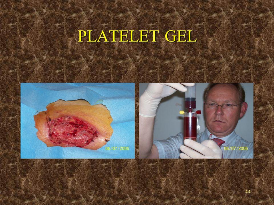 45 PLATELET GEL