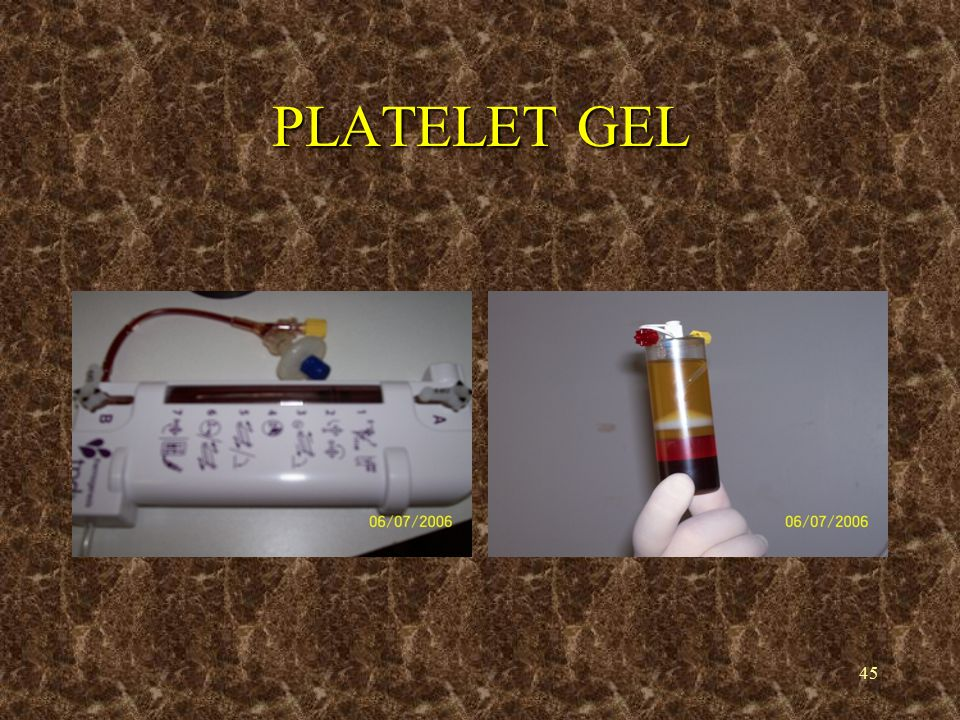 46 PLATELET GEL