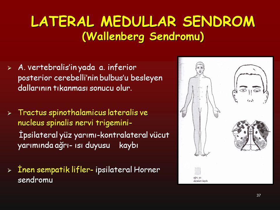 38  Nucleus ambiguus-  Nucleus ambiguus- ipsilateral palatal ve laringeal kas paralizisi Dysphagia (yutma güçlügü) Dysphagia (yutma güçlügü) Dysarthia (konuşma güçlüğü) Dysarthia (konuşma güçlüğü) Boğuk ses Boğuk ses İpsilateral gag refleksi kaybı İpsilateral gag refleksi kaybı  Nuclei vestibularis- bulantı, kusma, vertigo ve nistagmus  Pedunculus cerebellaris inferior- ipsilateral koordinasyon kaybı  Retiküler formasyondaki respiratuar merkez- hıçkırık LATERAL MEDULLAR SENDROM ( Wallenberg Sendromu)