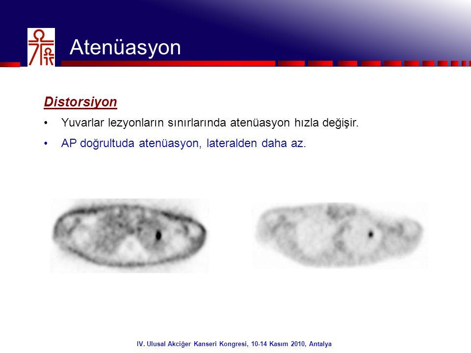 18/32 Atenüasyon Diafragmatik artefakt – Fizyolojik hareket •Hızlı atenüasyon ölçüm yöntemleri.