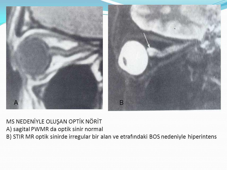 OPTİK SİNİR GLİOMU Pediatrik populasyondaki en sık düşük gradeli pilositik astrositomlardır.