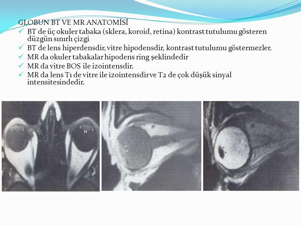 KOLOBOMA Fetal optik sapın kapanma defekti Sıklıkla bilateral, mikroftalmi, görme keskinliğinde azalma Optik disk kolobomunda ve''morning glory' anomalisinde optik sinir girişinde koni veya dörtgen şeklinde bir defekt bulunur.