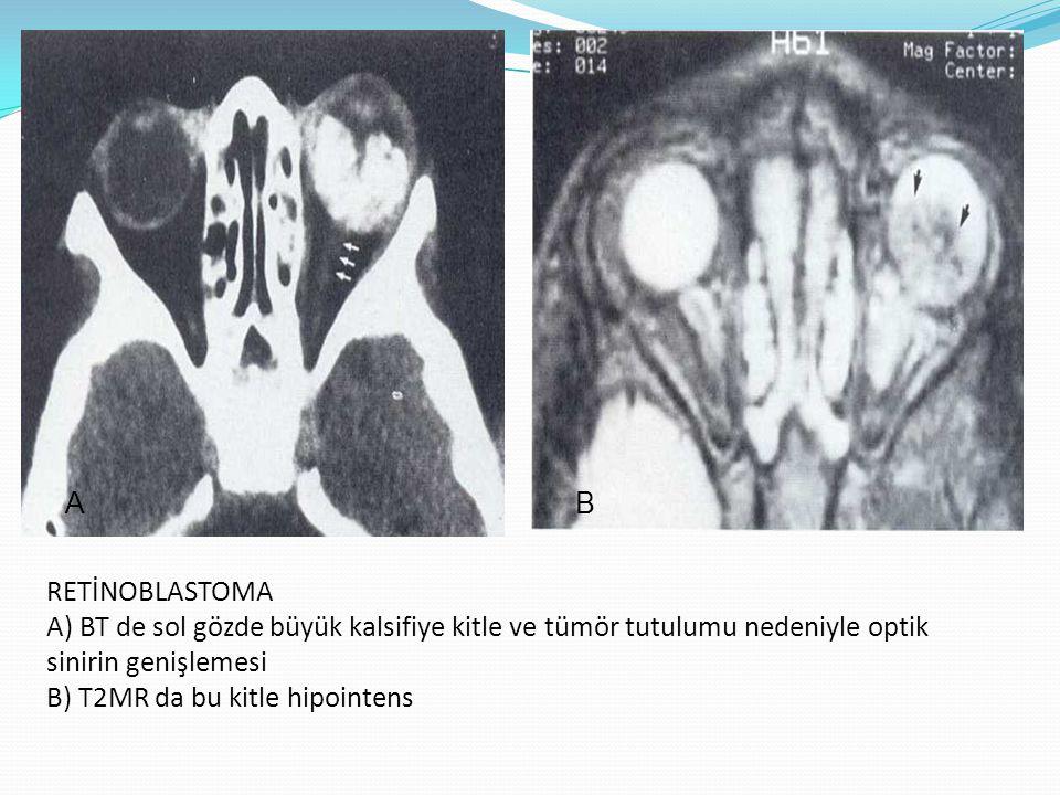 DİFFÜZ RETİNOBLASTOMA A) BT de sol globu tutan non-kalsifiye büyük kitle B) Postkontrast FS T1MR hetorojen kontrast tutulumu gösteren kitle (oklar: retinal ayrılma) A B