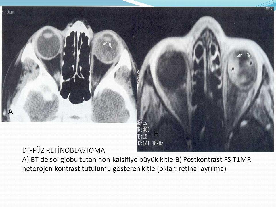REKÜRENS RETİNOBLASTOMA A) PWMR sağda enekulasyon bölgesinde ve sağ optik sinir boyunca uzanan ve B) koronal PWMR sellar ve suprasellar bölgede AB