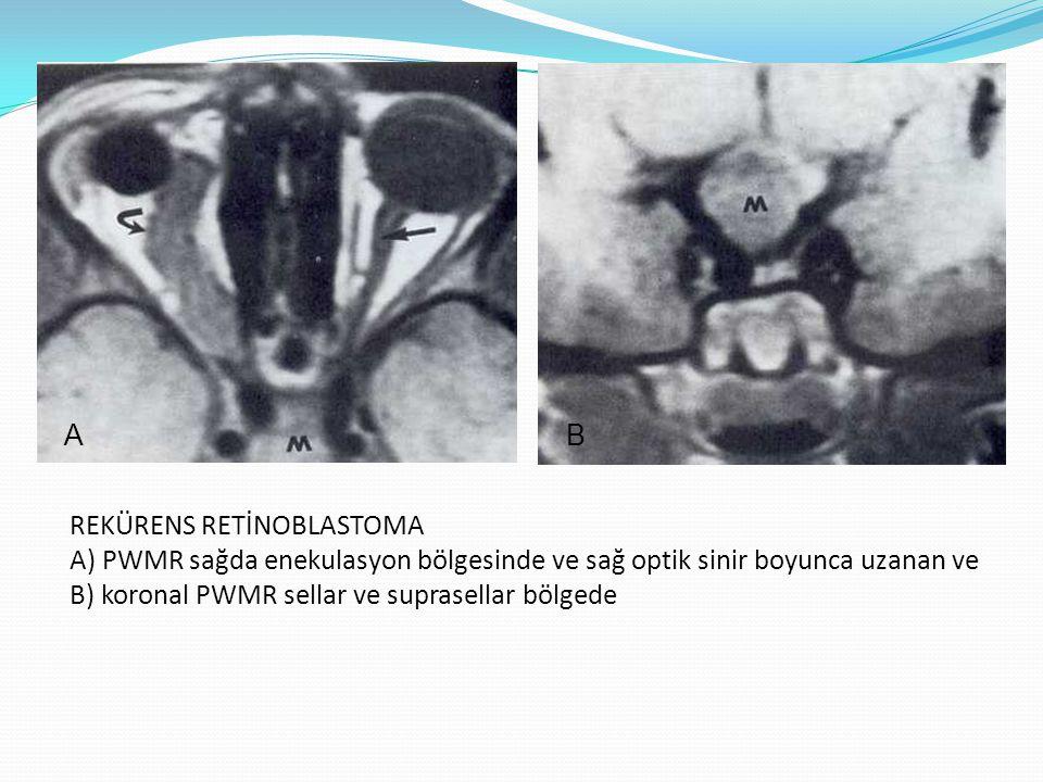 METASTAZLAR Genellikle pr tümör meme, akciğer ve böbrektedir.
