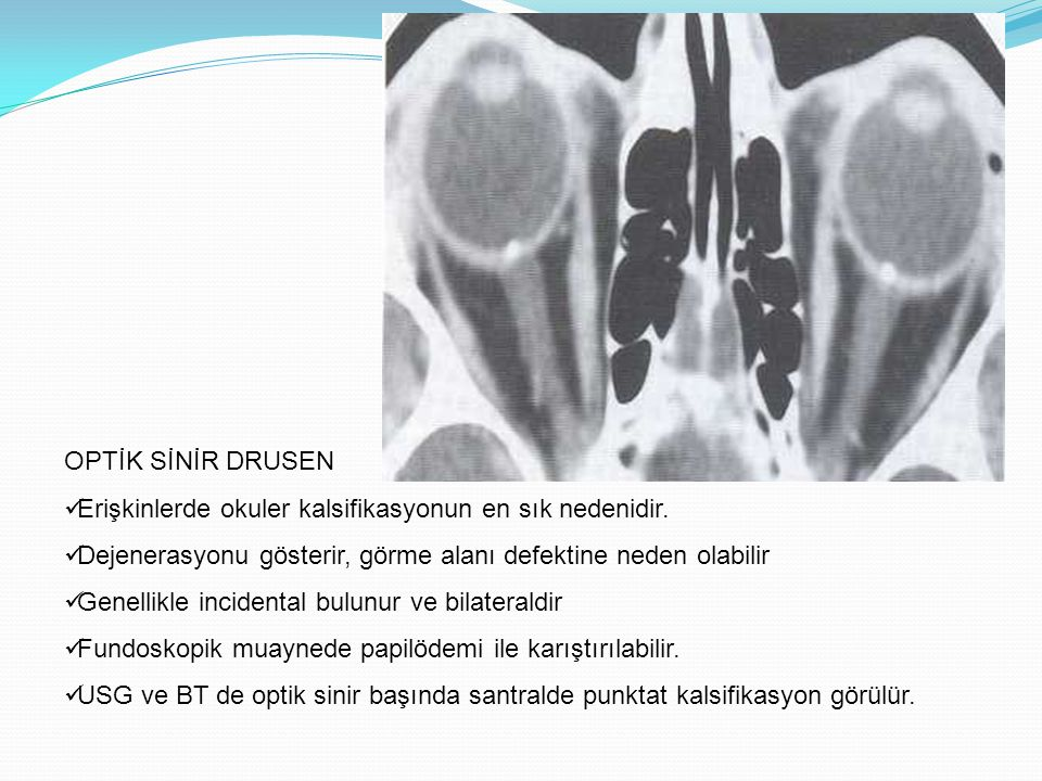 RETİNAL DEKOLMAN (AYRILMA) Rhegmatogenous Non-Rhegmatogenous -retraksiyona neden olan bir kitle -vitre içindeki fibroproliferatif hastalık -vitre içindeki inflamasyon -Primer vaskuler bir anomali (coat's hastalığı) -Travma, senil makuler degenerasyon, PHPV -Koroidal lezyonlar -Malign melanomlar ve koroidal hemanjiomlar Subretinal sıvı BT ve MR ile gösterilebilir.