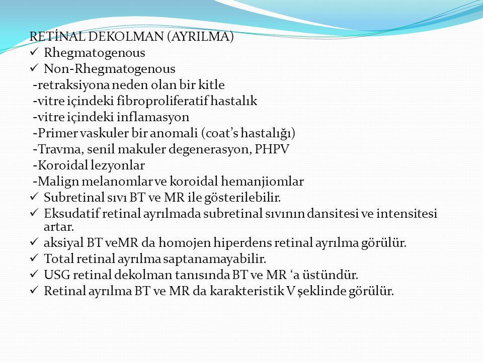 Coats hastalığı nedeniyle oluşan total retinal ayrılma A) BT, B) PWMR, C) T2MR A B C
