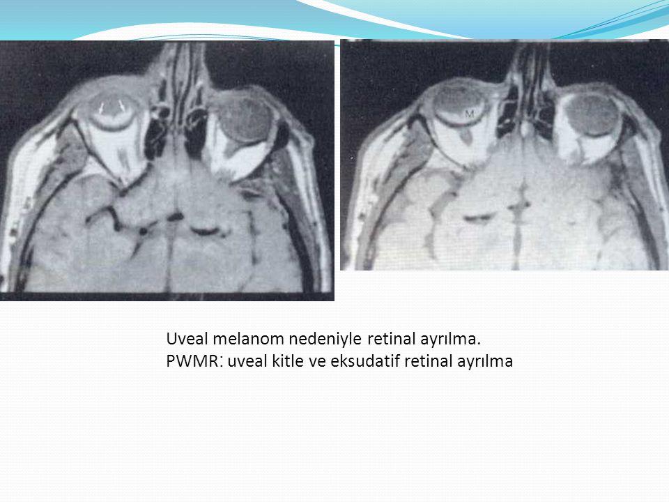 TOTAL RETİNAL AYRILMA T2 MR : ayrılan retina karakteristik V şeklinde.