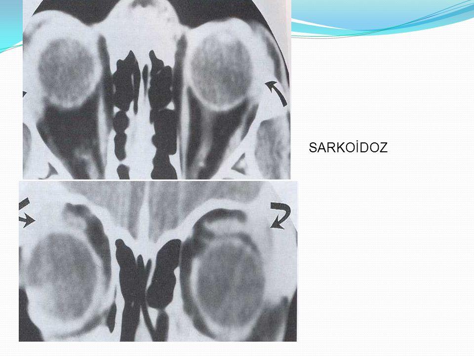 LAKRİMAL DRENAJ APARATUSU Epifora, selilüt ve şişlik İnfantlarda distal kanalın embriyolojik yetersizliğinde; mukosel BT ve MR postseptal yayılımın değerlendirilmesinde Dakriyosistografi; lakrimal kese ve nazolakrimal drenaj sisteminin obstruksiyon yerinin anatomik olarak tanımlanmasında Skuamöz hücreli ca, bazal hücreli ca, lenfoma ve sinonazal tm yayılımı nadiren görülür BT ve MR; kemik destruksiyonu ve invazyonun değerlendirilmesinde