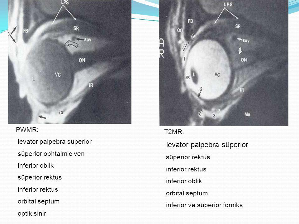 PWMR: optik sinirlerin intraorbital, intrakanalikuler segmentleri, kiazma ve hipotalamus