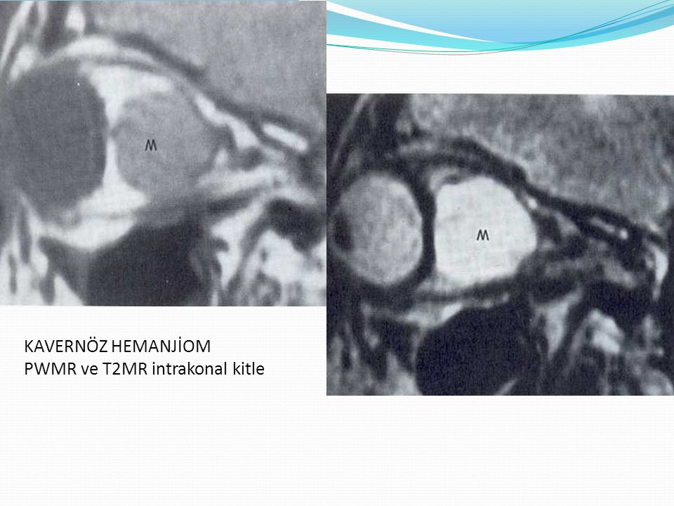 HEMANJİOM Kontrastlı BT de kontrast tutulumu gösteren intramuskuler hemanjiom