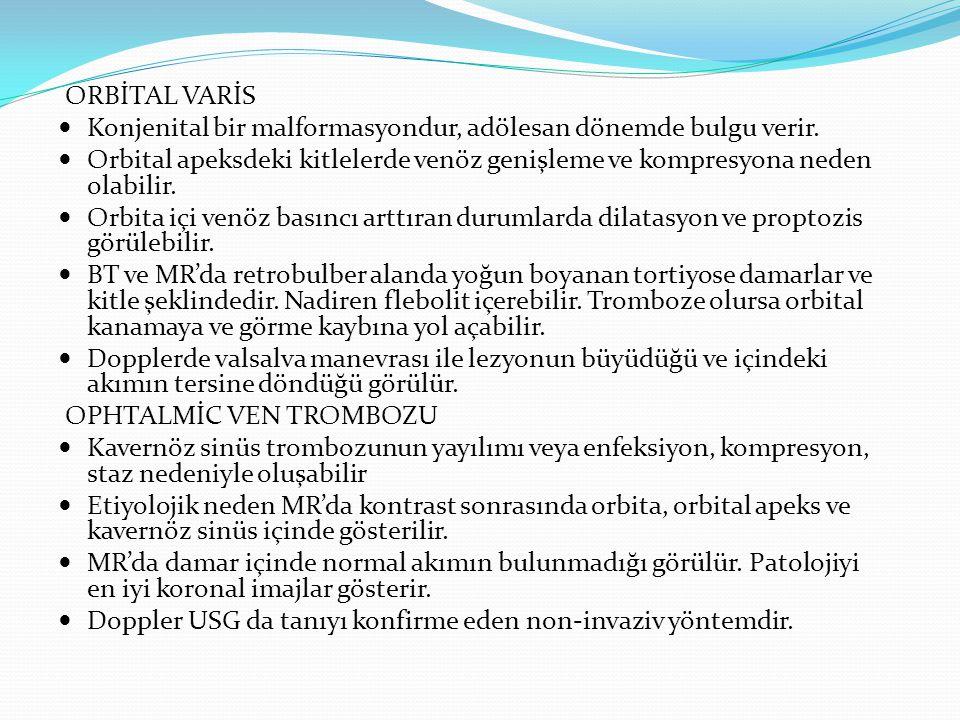 ORBİTAL VARİS