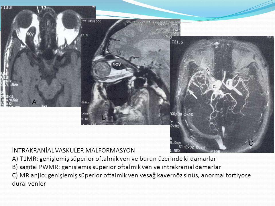 DİFF ÜZ ORBİTAL TUTULUM En sık enfeksiyöz veya imflamatuar orjinlidir.