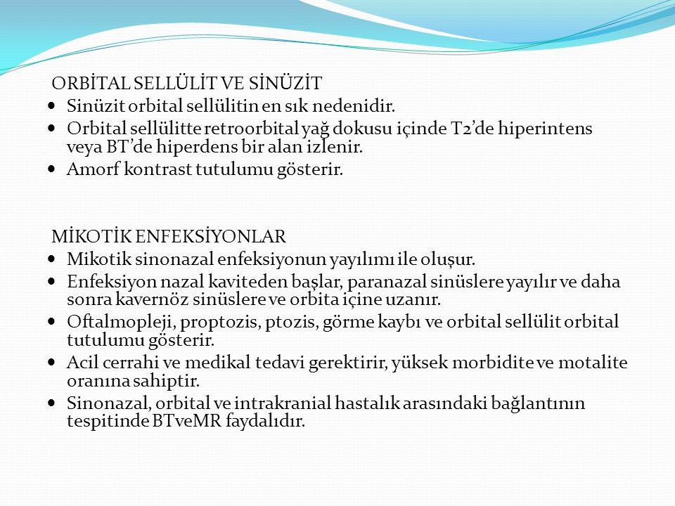 PRESEPTAL-RETROSEPTAL ORBİTAL İNFLAMASYON Periorbital yumuşak dokunun infiltrasyonu ve ödemi Retroseptal subperiosteal infiltrasyon ve ödem