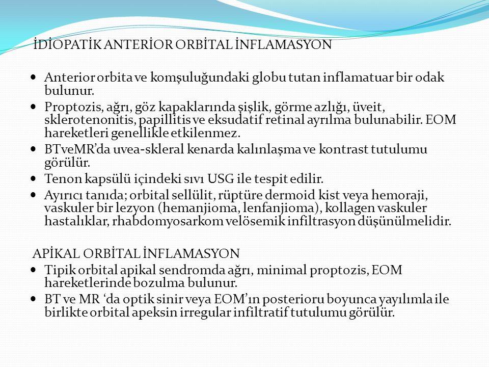 PSÖDOTÜMÖR PERİSKLERİT/PERİNÖRİT Postkontrast BT: sklerada diffüz kalınlaşma, tenon kapsülünün inflamatuar infiltrasyonu
