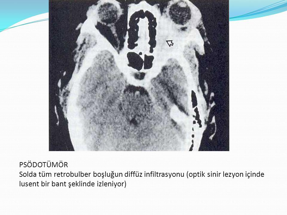 İDİOPATİK MYOSİTİK ORBİTAL İNFLAMASYON Bir veya daha fazla sayıda ekstraokuler kası infiltre eden inflamatuar bir proçesdir.