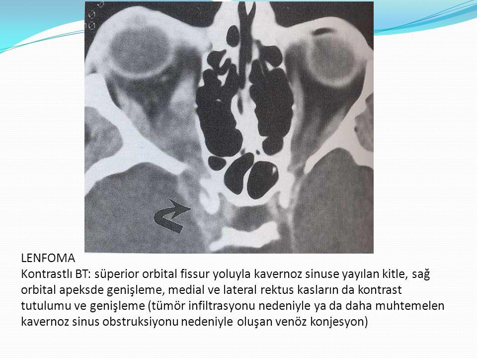 LENFOMATOİD GRANULOMATOZİS Kontrastlı BT: sağ orbitada intrakonal boşluğun diffüz infiltrasyonu (lenfoma, lupoid infiltrasyon, metastaz, psödotümör)