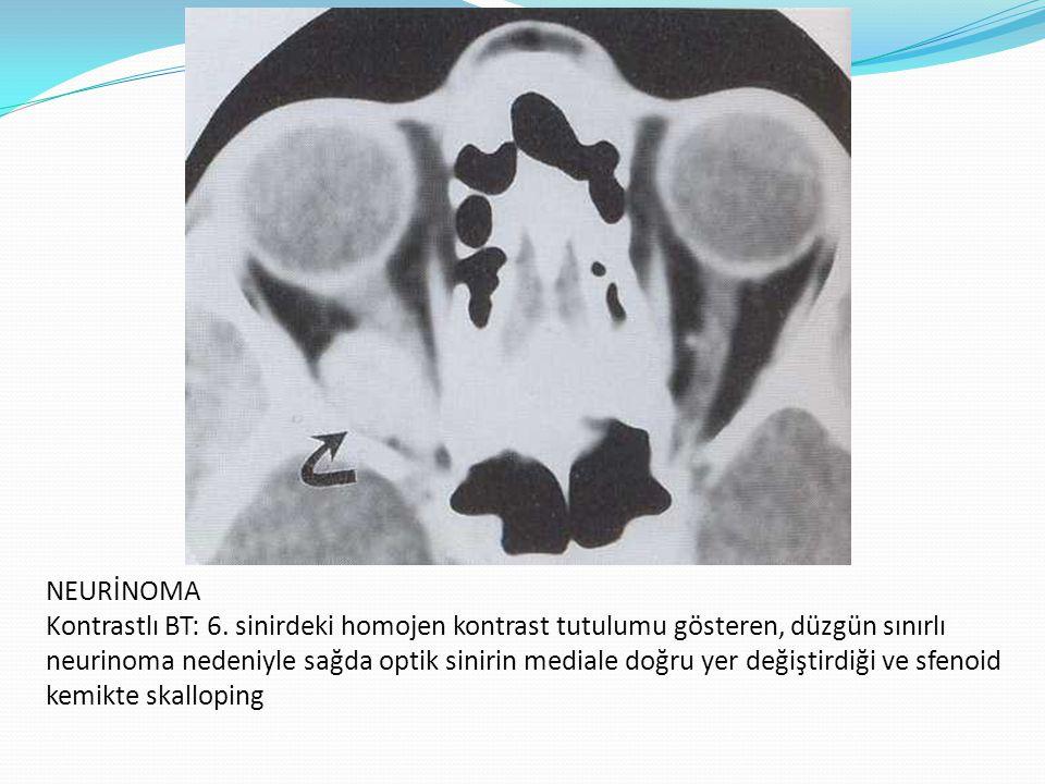 PLEKSİFORM NÖROFİBROMA T1 ve T2 MR da solda temporal skalpde ve sol orbitada hafif proptozise neden olan lezyon, T2 MR da optik sinirtutulumu da görülüyor.