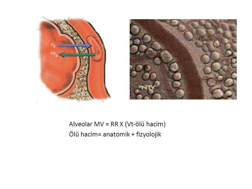 Solunum yetmezliği ile giden MV endikasyonları 1- Difüzyon bozukluğu: (Normokarbi + hipoksi, tip 1) FiO 2 arttırmakla hipoksi düzelir.