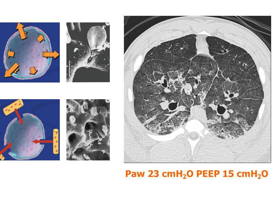 Shear-stres hasarı pro-inflammator mediatörlerin ortaya çıkmasına neden olabilir Biyotravma multiorgan yetmezliğinin hazırlayıcısıdır Akciğerler en pro-inflamatuvar organlardır Slutsky AJRCCM 1998;157:1721 Ranieri JAMA 1999; 282:54