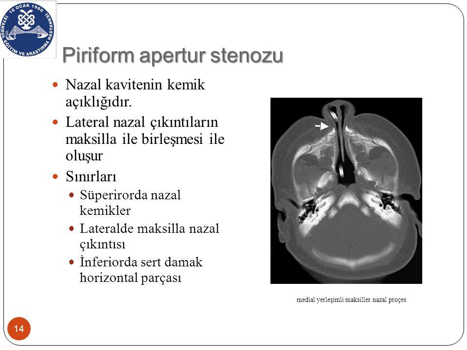 Piriform apertur stenozu Maksilla medial nazal çıkıntısı aşırı gelişir Genellikle bilateral olur % 60 hastada maksiler tek kesici diş %40 hipotalamo- hipofizer aks bozukluğu 15