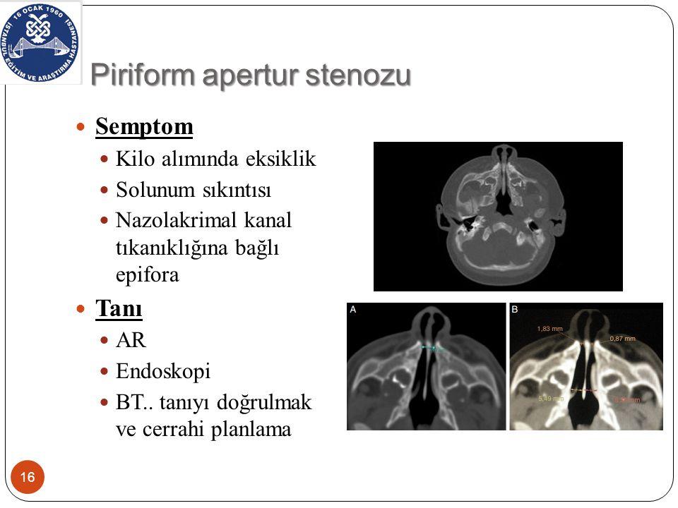 Piriform apertur stenozu-Tedavi 17 SF ile burun yıkama ve aspirasyon Topikal steroid İzlem Cerrahi Ciddi hava yolu tıkanıklığı ve solunum sıkıntısı Gelişme geriliği