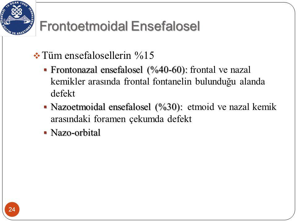 25 Glob medialinde kistik lezyon Kistik lezyon içinde hernie frontal lob dokusu