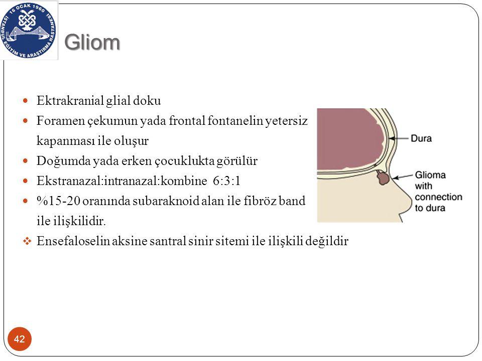 Gliom 43 Sert, sıkıştırılamayan, pulsasyon vermeyen, telenjektajik yüzeyli kitle Çoğunlukla lateral nazal duvar yada orta konkadan bölgesinde gelişir Glabellada lokalize, burun kökünde genişleme ile açıkça görülebilir Burun içinde soluk renkli kitle ve septal deviasyon Orbita, frontal sinüs, oral kavite, nazofarinks Rinore