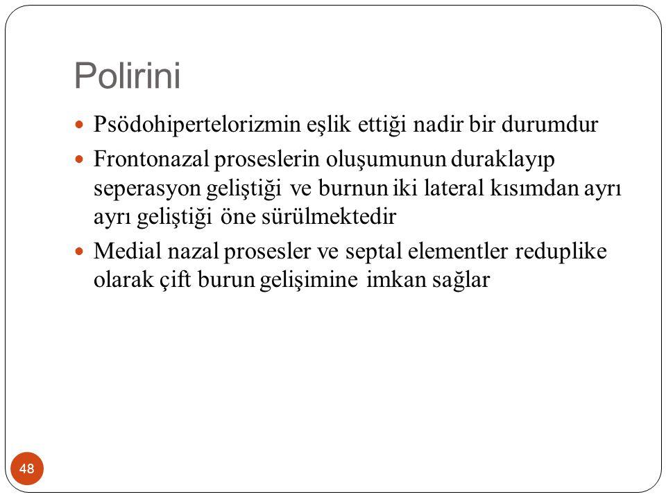 Polirini-Tedavi 49 Cerrahi tedavide transnazal yolla eşlik eden koanal atrezi varsa açılmalı ve takiben her iki burnun medial kısımlarının çıkarılarak kalan lateral yarılarının orta hatta anastomozu uygulanır.