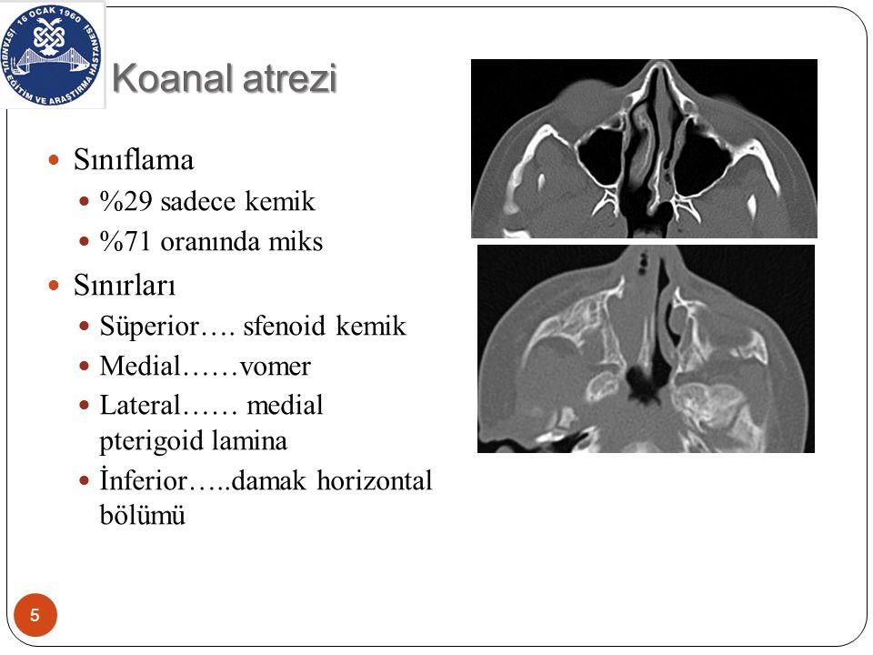 Koanal atrezi-semptom Bilateral vakalar Yenidoğan solunum sıkıntısı ve siklik siyanoz Siklik siyanöz çocuğu güçlü nefes almaya zorlar Çocukta ağız kapalı, göğüs retrakte ve siyanotik bir görünüm oluşur Ağlama ile siklus kırılır Tek taraflı vakalar Geç çocukluk döneminde tanınır Beslenme problemleri Kronik burun tıkanıklığı Kalın mukus sekresyon Sesli burun solunumu 6