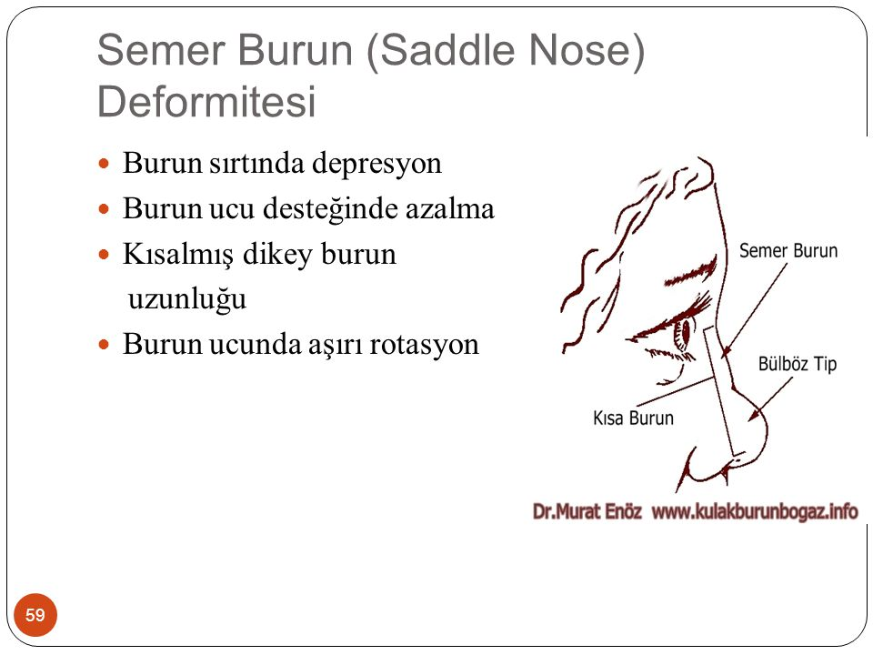 Semer Burun (Saddle Nose) Deformitesi 60 Nedenleri Travmatik Sarkoidoz Sifiliz Wegener granülomatozu Konjenital