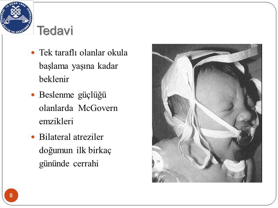 Cerrahi 9 Transnazal endoskopik en sık ve populer yöntem Endoskopik transeptal Transnazal mikroskop (300×) Transpalatal