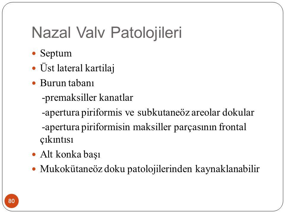 Nazal Valv Patolojileri 81 Tanıda Burun ucu parmakla yukarı karldırılarak septumun üst lateral kıkırdak ile ilişkisi çıplak gözle ve ya 0 derece endoskop ile değerlendirilir.