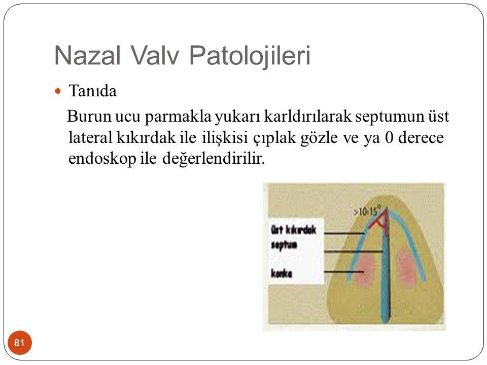 Nazal Valv Patolojileri 82 Nazal valv darlığı olan hastalarda yanak laterale doğru çekilerek, üst laterak kıkırdağın septumdan uzaklaştırılması ile valvin genişlemesi cottle testi olarak isimlendirilir.