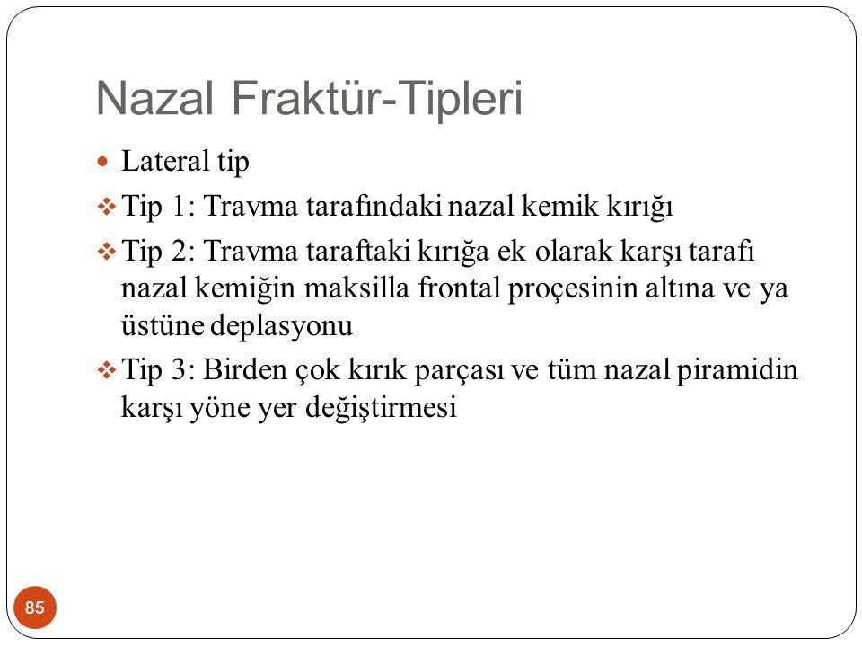 Nazal Fraktür-Semptomlar 86 Genellikle burun sırtında hassasiyet, ağrı, şişlil, ekimoz Burun kanaması Burun şeklinde bozukluk