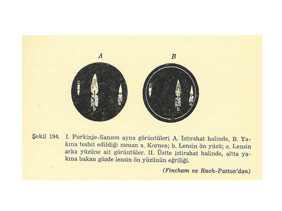 Purkinje Damar Görüntüsü Hareketli bir ışık kaynağı ile yüze yakın mesafede aydınlatılan gözde retina damarlarının gölgesinin aynı kişi tarafından görülmesidir.