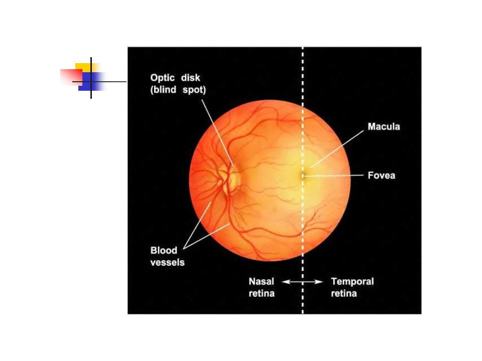 Makular dejenerasyon Retinitis pigmentosa Glokom Diyabet