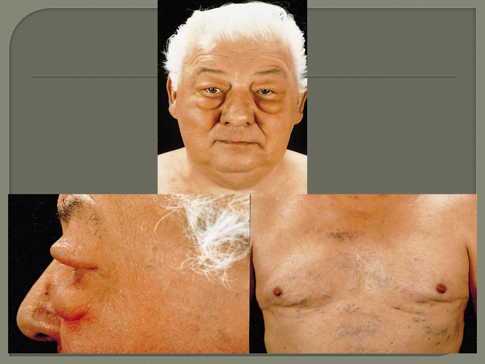 MAL İ GN %80BEN İ GN %20 Akci ğ er Ca (squamoz, küçük hücreli, adenokarsinom) Mediastinal fibrozis Mediastinal lenfomaGranülomatöz fungal hst (Histoplasmozis vb.) Tiroid karsinomaMediastinal radyoterapi TimomaRetrosternal guatr TeratomaAort anevrizma ve diseksiyonu AnjiyosarkomaTrombofili MetastazBehçet hst İ atrojenik (kateter, pace, ICD)