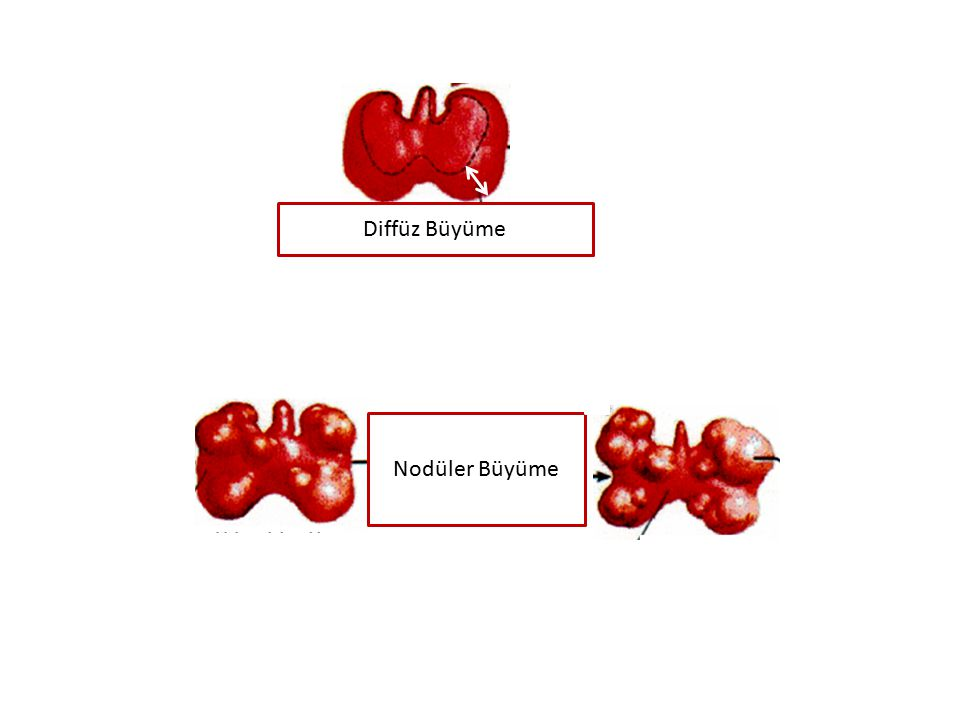 GUATR-Nedenleri Multinodüler guatr İyot eksikliği Otoimmün/tiroidit: Hashimoto/sessiz/subakut/postpartım/infeksiyöz Guatrojenler: İyot/Lityum/Bazı besinler İnfiltratif tiroid hastalıkları Toksik Guatr Kistler Tiroid adenomları Tiroid karsinomları: Papiller/Folliküler/Medüller