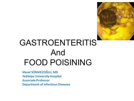 GASTROENTERITIS And FOOD POISINING Meral SÖNMEZOĞLU, MD Yeditepe University Hospital Associate Professor Department of Infectious Diseases and Microbiology.