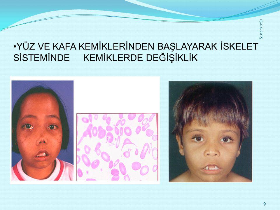 TEDAVİ Kan Nakli 3-4 haftada bir hastaya kan nakli yapılır. 15.04.201510