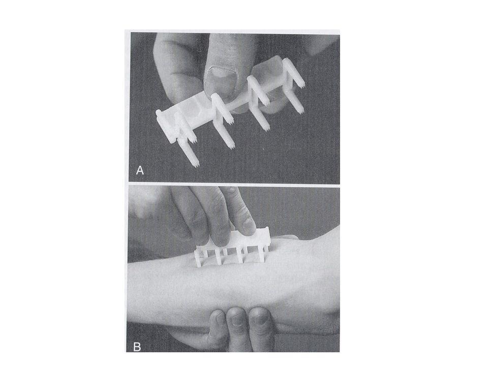 Dermisin içine ince uçlu enjektörlerle (26 G) 0.01-0.02 ml allerjen verilerek uygulama yapılmaktadır.