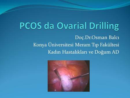 PCOS da Ovarial Drilling