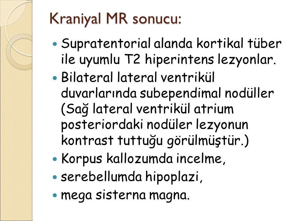 Kraniyal MR sonucu: Supratentorial alanda kortikal tüber ile uyumlu T2 hiperintens lezyonlar.