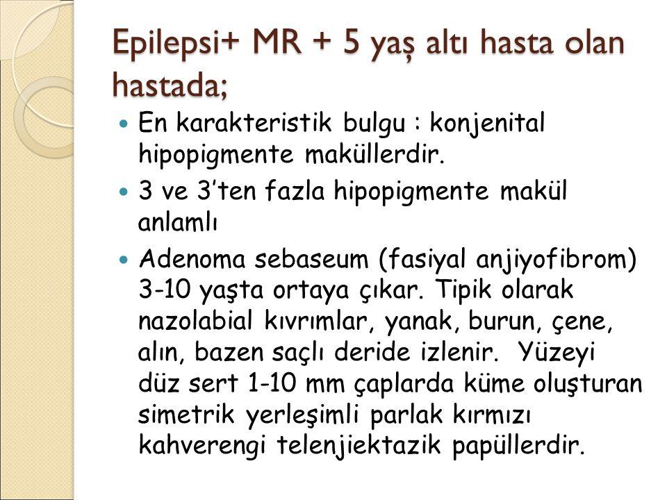 Epilepsi+ MR + 5 yaş altı hasta olan hastada;
