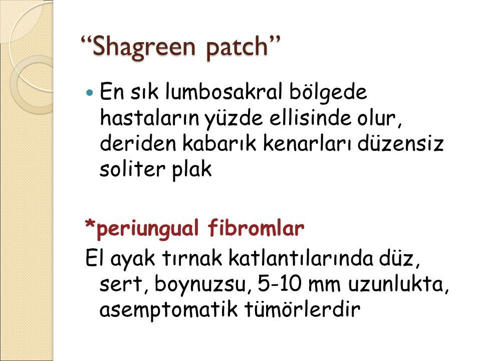 Shagreen patch En sık lumbosakral bölgede hastaların yüzde ellisinde olur, deriden kabarık kenarları düzensiz soliter plak.